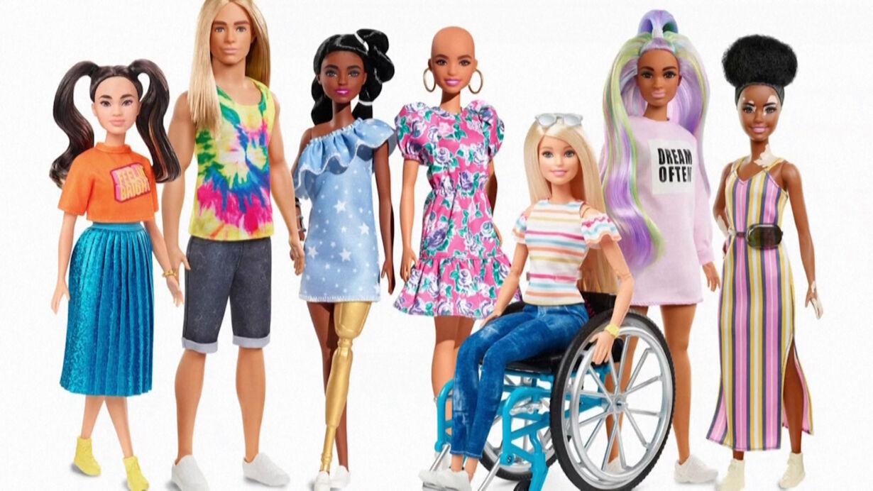 Nu kan du ønske dig en Barbiedukke med hudsygdom