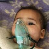 Det er nu ingen tvivl om at gasangrebet i byen Khan Sheikhun i Idlib-provinsen blev udført med nervegassen Sarin, som blev udviklet i Nazityskland under anden verdenskrig. Det udtaler tyrkiske eksperter, der har obduceret lig fra angrebet. Her ses et barn modtage behandling på det lille hospital i byen Maaret al-Noman, der ligger tæt på den angrebne by.
