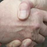 »Andre kulturer og religioner har for længst indset faren og det uhygiejniske ved håndtryk,« skriver Jesper Brandt Andersen, speciallæge i pædiatri.