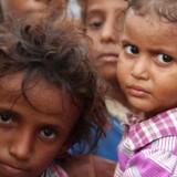 Tusinder er blevet dræbt i bombardementer i krigen i Yemen. Men endnu flere risikerer at dø af sult.