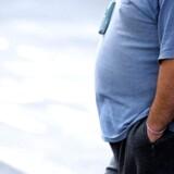 Arkivfoto: RB plus. Styrelse vil operere flere unge for fedme. Fremover skal flere svært overvægtige - herunder unge ned til 18 år - kunne få en fedmeoperation, fremgår det af en ny anbefaling fra Sundhedsstyrelsen. Arkivfoto: ARKIVFOTO af overvægtig mand- - Se RB 14/7 2016 04.23. Overvægt og fedme skærer op til ti år af levetiden. Nyt studie samler resultater fra 239 tidligere studier og slår fast, at overvægt kan gøre livet kortere. (Foto: PAUL ELLIS/Scanpix 2016)