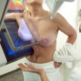 ARKIVFOTO. En mandlig overlæge menes at have overset kræftknuder hos mindst otte kvinder.