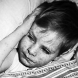 MFR-vaccinen blev indført i 1987 mod blandt andet mæslinger. Foto: Lars Rievers