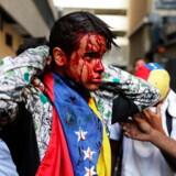 Hvem er Venezuelas retmæssige leder: hidtidige præsident Nicolas Maduro eller den Trump-støttede parlamentsformand Juan Guaidó? Magtkampen mellem de to kostede natten til torsdag mindst 16 menneskeliv, mens hundredvis blev såret – som demonstranten her i hovedstaden Caracas.