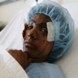 En såret kvinde modtager behandling i Sana'a i Yemen efter angiveligt at være blevet såret under saudiske luftangreb.