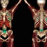 CT-scanning af metastaserende knoglekræft.