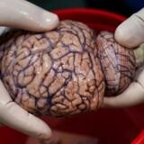 Dette er ikke en grisehjerne, men en menneskehjerne fra en hjernebank i New York.
