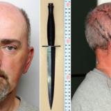 Det 41-årige parlamentsmedlem Jo Cox blev myrdet 16. juni 2016 – få dage før EU-afstemningen – og gerningsmanden var Thomas Mair – her anholdelsesbilleder, hvor skrammerne i hovedet stammer fra politiets rugbytackling af ham, efter at han forsøgte at flygte.