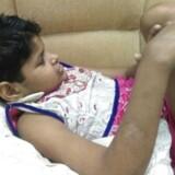 Personalet på det indiske hospital, hvor pigen er under behandling, oplyser, at pigen sidder og går som en abe. Hun har intet sprog ud over primale lyde, men er tilsyneladende ved at lære at gå på to ben. EPA/STR