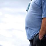 """Antallet af fedmeindgreb begynder nu på ny at stige – både på offentlige sygehuse og privathospitaler. En god udvikling, mener fagfolk, mens regioner advarer mod at bruge den type indgreb """"i flæng"""". ARKIVFOTO."""