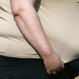 »Hele 41.000 danskere på 16 år eller derover har et BMI mellem 40 og 50!« Arkivfoto