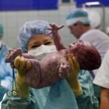 Efter en hård fødsel kommer der nu alligevel penge til at løfte kvaliteten på fødeafdelingerne