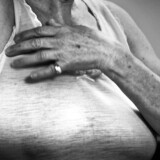 Hidtil er ældre brystkræft-opererede røget ud af screeningssystemet, når de fylder 69 år, men ifølge en ny vejledning fra Sundhedsstyrelsen vil brystkræft-patienter mellem 70 og 79 år fremover komme til at indgå i et screeningsforløb, hvor de vil få tilbudt mammografi hvert andet år for at opspore tegn på tilbagefald.