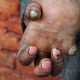 En hånd ødelagt af spedalskhed. Billedet er fra Indien.