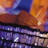 Genmabs partner Novartis har besluttet at starte fase 3-studier med Ofatumumab til behandling af recidiverende multipel sklerose. Man begynder med at finde patienter til studierne i september i år, oplyser Genmab i en meddelelse til fondsbørsen torsdag morgen.