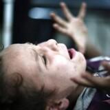 En dreng skriger, mens en læge fjerner granatsplinter fra hans ben i byen Douma nordøst for Damaskus.