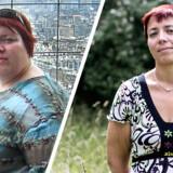 Anja Sheryer har tabt 82 kilo efter en fedme-operation.