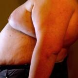 Svær overvægt er blevet så stort et sundhedsproblem, at op mod 15.000 danskere det seneste tiår har fået foretaget en fedmeoperation. For nogle går det så galt, at de bagefter bliver tilkendt erstatning for ødelagte maver. Arkivfoto: Bax Lindhardt
