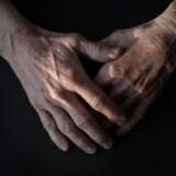 MODELFOTO. Gigtplagede hænder. Gigtforeningen har netop ønsket, at man fjernede varighedsbegrænsningen på sygedagpenge, siden det blev indført.