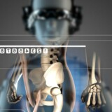 En fremtid, hvor man kan springe ventetiden hos lægen over og i stedet konsultere en robotlæge, der fortæller dig, om din diabetes udvikler sig i den gale retning, din hoste skyldes lungebetændelse eller er et tegn på lungekræft, eller din hjerterytme signalerer begyndende stress, er ikke længere science fiction. Modelfoto: Iris