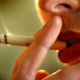 Rygning forværrer tandsygdommen paradentose, fordi rygere mister mere knoglemasse. Det viser et nyt dansk studie. Foto: Jens Nørgaard Larsen