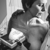 Jo tidligere en kræftknude behandles, jo større er chancen for at bevare brystet, siger Kræftens Bekæmpelse.