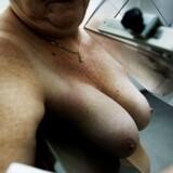 Mammografiundersøgelse, Bispebjerg Hospital.