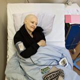Kemikalierne i kemoterapi er stærke. Lotte taber sit hår efter anden kemobehandling.