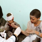 Et såret barn fra en skolebus, der blev bombet i Yemen. Mindst 29 børn blev dræbt. Mogens Lykketoft kritiserer, at hverken Europa eller USA yder tilstrækkeligt pres for at forhindre humanitære katastrofer i Mellemøsten.