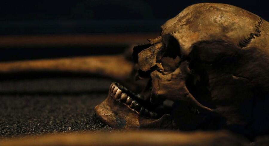 En videnskabelig undersøgelse af knoglerester tyder på, at landsbybeboere i den nordøstlige del af England i middelalderen lemlæstede deres døde for at sikre sig imod, at de skulle rejse sig fra deres grave. Kraniet på billedet er fra en udstilling i Museum of London i den britiske hovedstad, hvor man ikke har fundet tegn på, at der var en lignende frygt for »levende døde«. Foto: Stefan Wermuth/Reuters