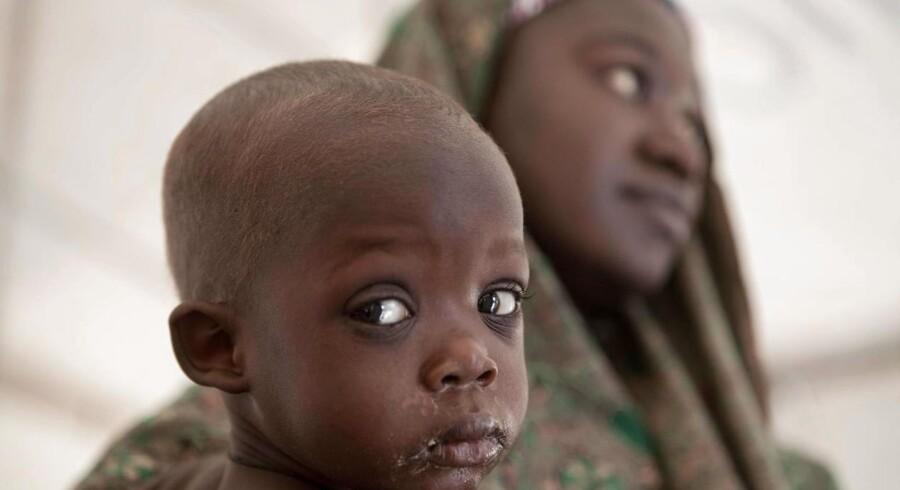 En mor og hendes barn får hjælp på en klinik, som FNs Børnefond, UNICEF, driver for landets internt fordrevne. De er flygttet fra hus og hjem på grund af oprørs- og terrorbevægelsen Boko Haram. / AFP PHOTO / FLORIAN PLAUCHEUR