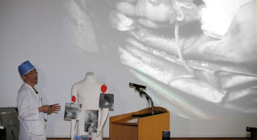 Kirurgen Lee Cook-jong fortæller om fundet i den nordkoreanske soldats mave.