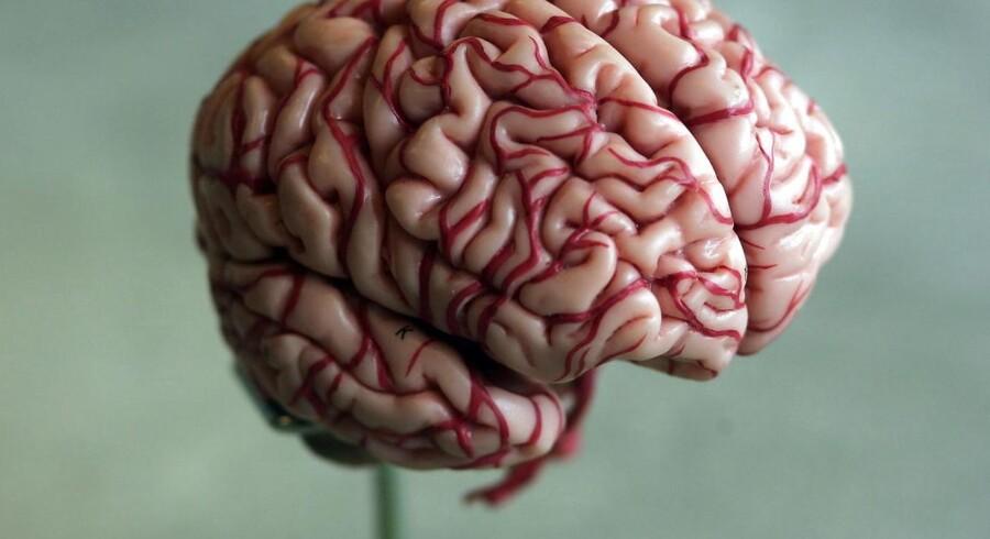 En ny, international undersøgelse viser så gode resultater af en kateter-behandling mod blodpropper i hjernen, trombektomi, at det vil stille skærpede krav til sundhedsvæsenet herhjemme, vurderer neurologer.