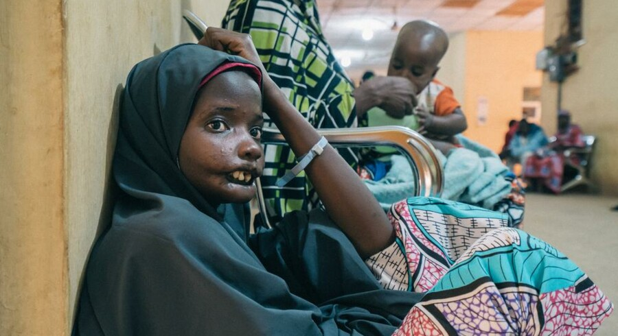 19-årige Amina blev ramt af nomasygdommen som barn, men er siden kommet i behandling.