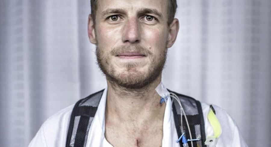 Michael Lunding fik som den første indopereret den nye udgave af en topavanceret hjertepumpe.
