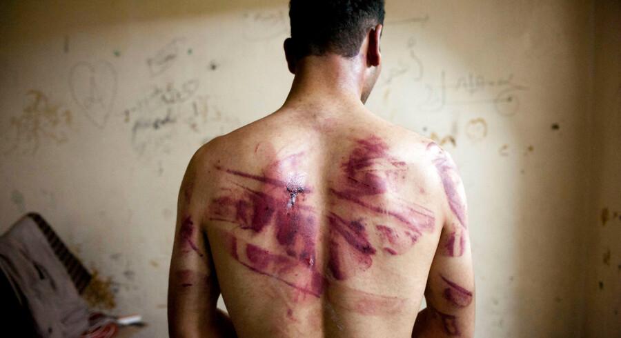 En syrisk mand viser sporene fra tortur på sin ryg, efter at han blev løsladt fra et af regeringens fænglser i 2012. Amnesty vurderer, at mindst 17.000 fanger er blevet dræbt eller døde af tortur i de syriske fængsler, siden krigen begyndte i 2011.