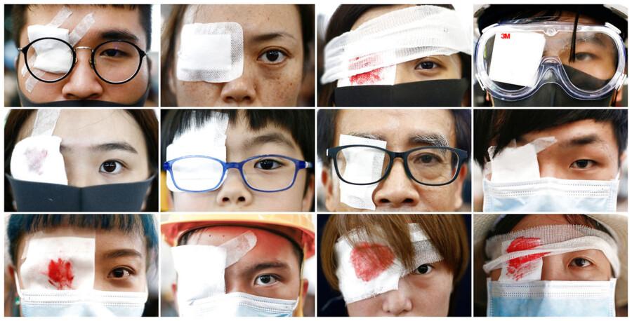 En klap for det ene øje er blevet et nyt symbol for demonstranterne i Hongkong.