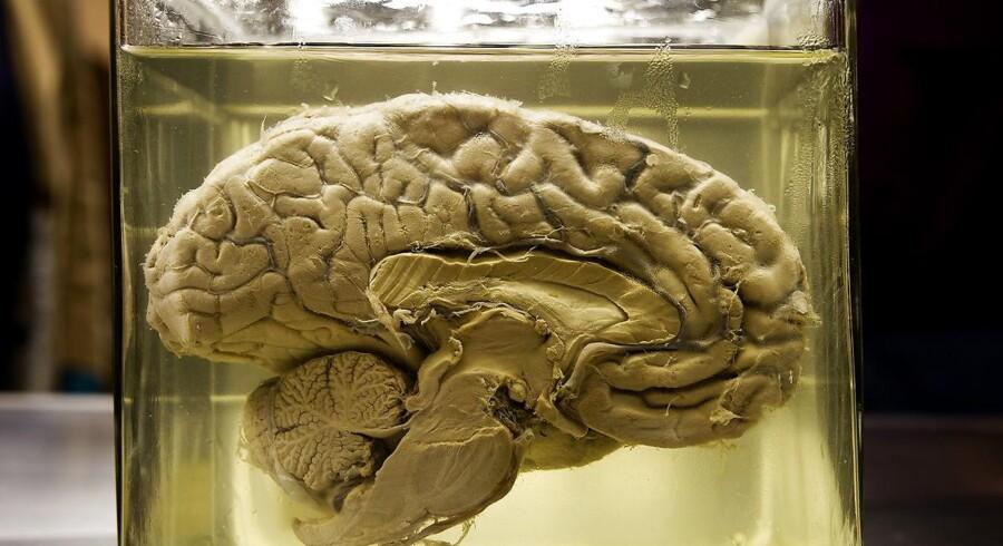 Det er herinde, det går galt, når mænd begår vold. I et nyt studie har forskere afdækket de forandringer i hjernens biologi, som i udpræget grad optræder hos personer med tendens til impulsiv, aggressiv adfærd.
