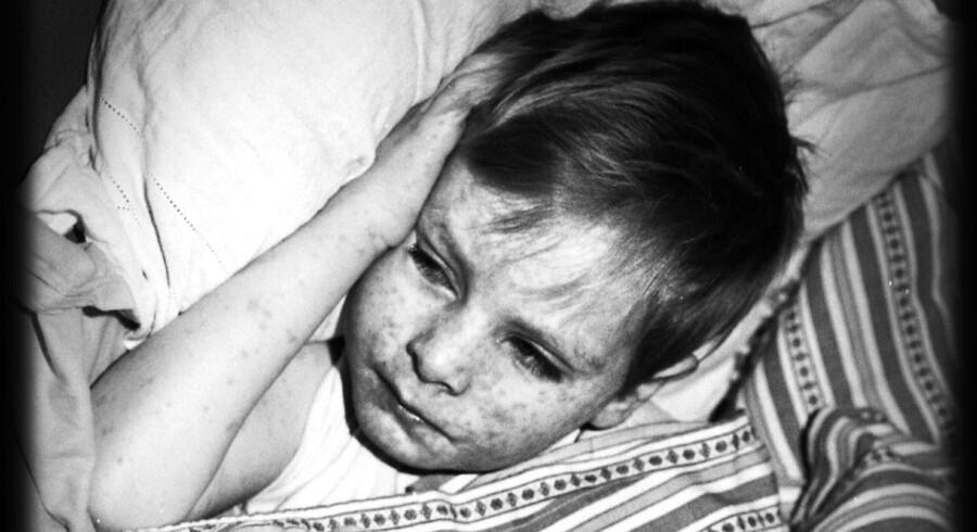 Inden for kort tid er der registreret tre tilfælde af mæslinger, og læger i Københavns-området opfordres nu til at være ekstra opmærksomme på sygdommen.