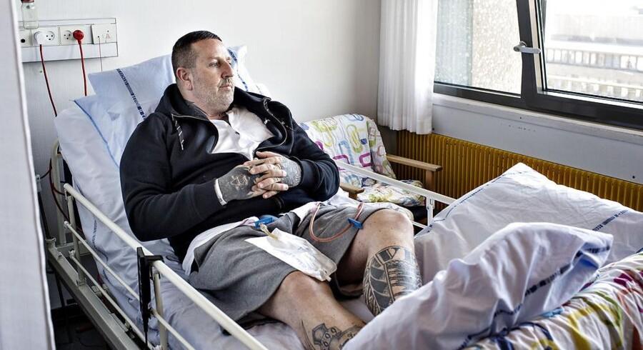 Den tidligere Hells Angels og Bandidos rocker Brian Sandberg er idag helt ude af rocker- bandemiljøet. Den rockertatoverede hånd hviler på sårvæskeposen. BrianSandberg er på Rigshospitalet hvor han er blevet opereret formodermærkekræft.