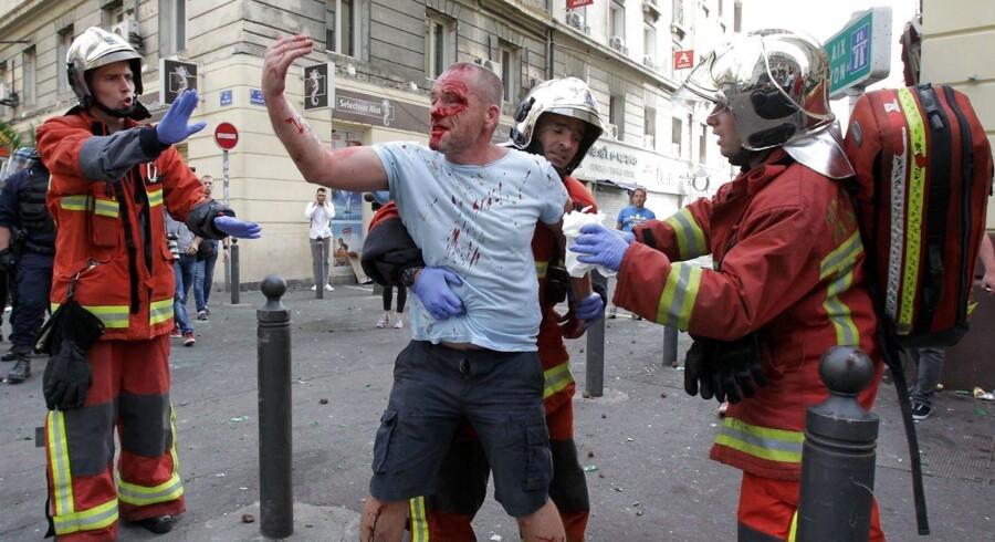 En engelsk supporter blødte voldsomt efter at have været i nærkamp med russiske fans før lørdagens uafgjorte EM-kamp mellem de to nationer i den franske havneby Marseille.