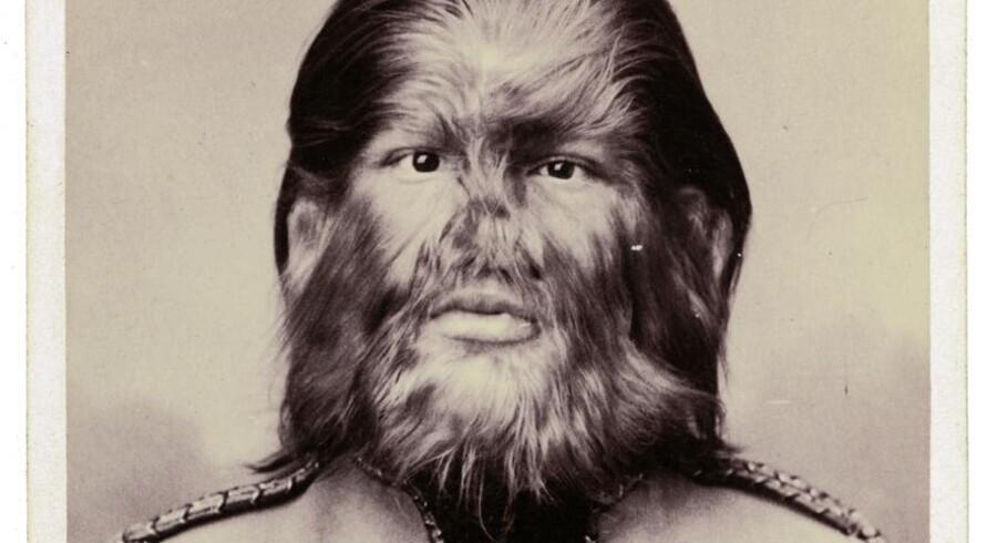 Levendegørelsen af ulvemyten: Russiske Fedor Jeftichew havde hypertrichosis (varulvesyndrom). Han levede af at turnere med sin genetiske mutation i et omrejsende cirkus til sin død i 1904.