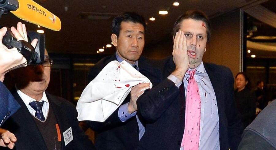 Nordkorea kalder angrebet på den amerikanske ambassadør Mark Lippert i Sydkorea for »et knivangreb af retfærdighed«.