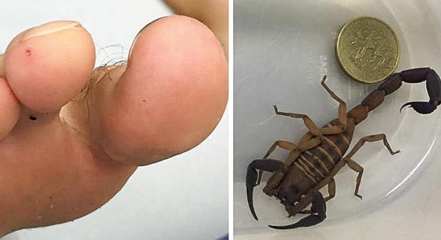 Tåen og skorpionen. Bemærk stik på tå ved siden af storetå. Billedet stammer fra Tinggaard M, Thorsteinsson K., »Skorpion i skoen«. Ugeskr Læger 2017;179:V68994.