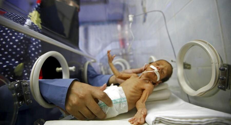 En nyfødt på et hospital i Yemens hovedstad, Sanaa.