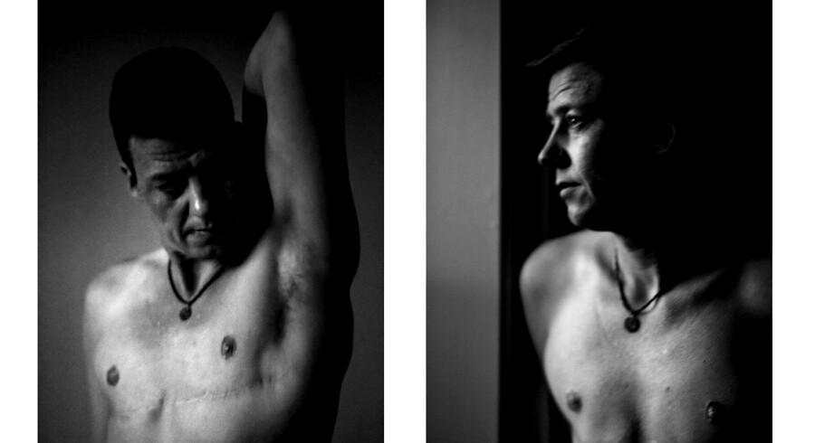Mark Nielsen blev opereret i Tyskland for egen regning, da han ikke kunne vente på en afgørelse fra Sexologisk Klinik.