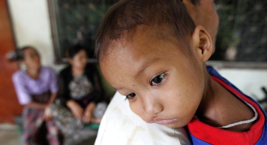 Tuberkolose har de seneste mange år næsten udelukkende været et problem i fattigere lande - som her i Thailand, hvor en fireårig dreng fra Burma bliver behandlet for sygdommen. Nu bliver de udsatte grupper i herhjemme i stigende grad også ramt af tuberkolose. Arkivfoto: Barbara Walton