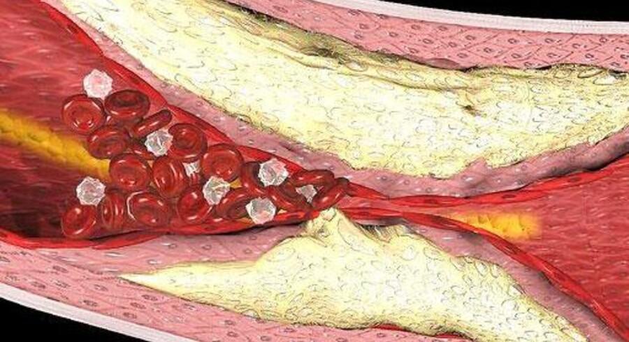 Der er en stærk sammenhæng mellem forhøjet kolesterol og åreforkalkning.