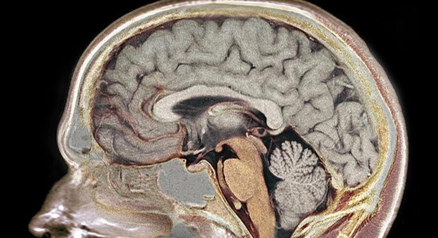 Farvelagt MR-scanning af en hjerne.