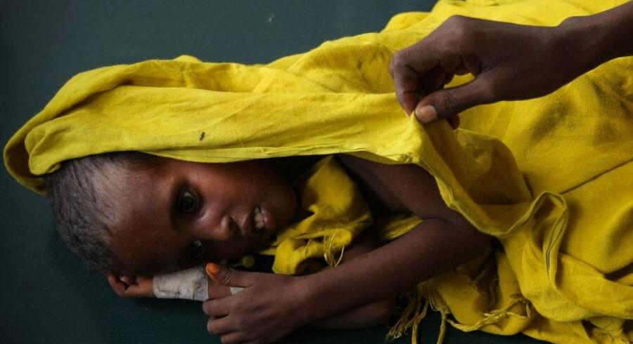 En mor våger over sit underernærede og dehydrerede barn på Banadir Hospital i Somalias hovedstad, Mogadishu. Krisen har allerede kostet titusinder af liv.